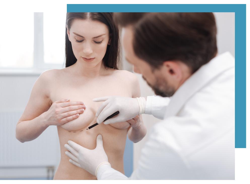 dessin-intervention-mammaire
