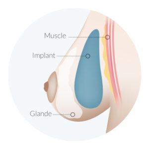 prothese-glande-mammaire