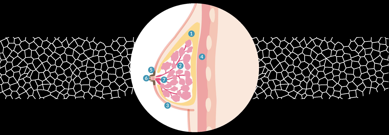 schema-implant-sein-profil